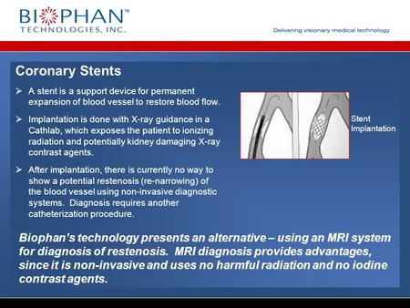 Coronary Stents  A stent is a support device for permanent expansion of blood vessel to restore blood flow.  Implantation is done with X-ray guidance.