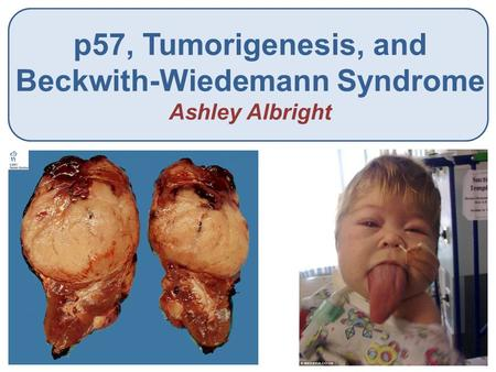 P57, Tumorigenesis, and Beckwith-Wiedemann Syndrome Ashley Albright.