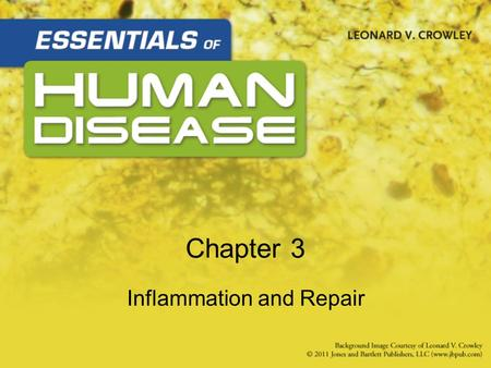 Chapter 3 Inflammation and Repair. Learning Objectives List characteristics and clinical manifestations –Acute inflammation –Types of exudates: serous,