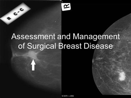 Lisa Mifsud. Assessment and Management of Surgical Breast Disease.