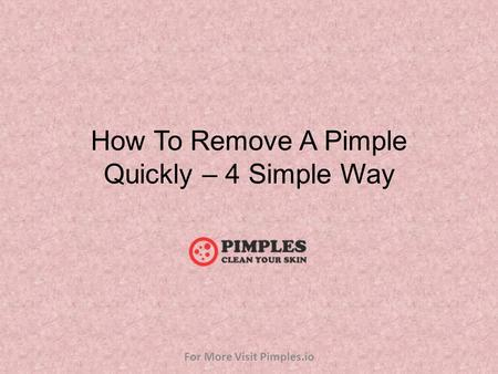 How To Remove A Pimple Quickly – 4 Simple Way For More Visit Pimples.io.