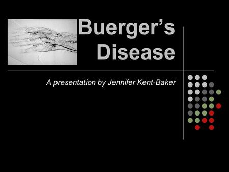 Buerger's Disease A presentation by Jennifer Kent-Baker.