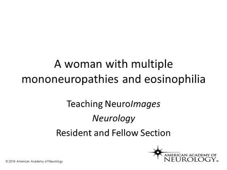 A woman with multiple mononeuropathies and eosinophilia Teaching NeuroImages Neurology Resident and Fellow Section © 2014 American Academy of Neurology.