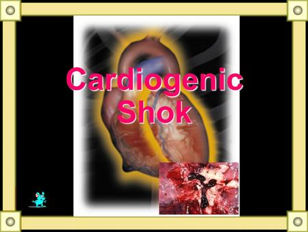 Cardiogenic Shok Some Notes Develops in 10% to 20% of patients hospitalized AMI Mortality of such patients approximately 80% or higher Very few patients.