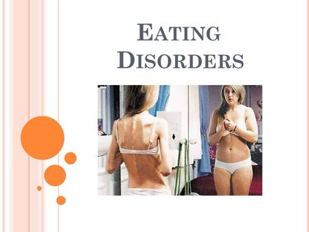 E ATING D ISORDERS. W HAT ARE EATING DISORDERS ? An eating disorder is a change in one's normal eating habits which can cause a drastic change in weight.