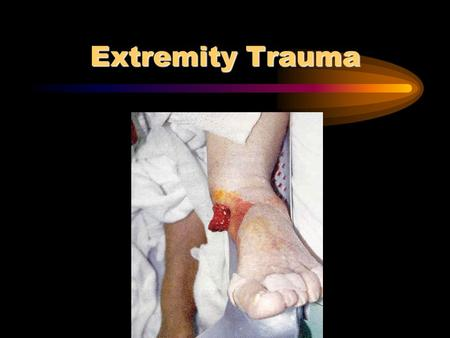 Extremity Trauma. Anatomy Bones Joints Nerves Soft tissue.