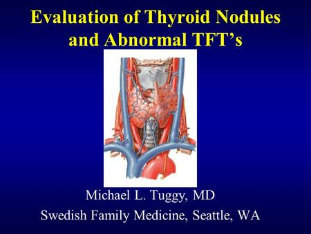Evaluation of Thyroid Nodules and Abnormal TFT's Michael L. Tuggy, MD Swedish Family Medicine, Seattle, WA.