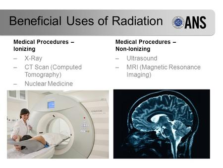 Medical Procedures – Ionizing –X-Ray –CT Scan (Computed Tomography) –Nuclear Medicine Medical Procedures – Non-Ionizing –Ultrasound –MRI (Magnetic Resonance.