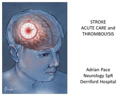 STROKE ACUTE CARE and THROMBOLYSIS Adrian Pace Neurology SpR Derriford Hospital.