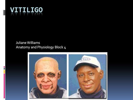 Juliane Williams Anatomy and Physiology Block 4. What is Vitiligo? It is a pigmentation disorder in which melanocytes in the skin are destroyed.