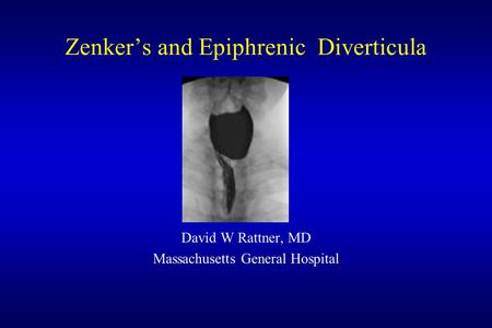 Zenker's and Epiphrenic Diverticula David W Rattner, MD Massachusetts General Hospital.
