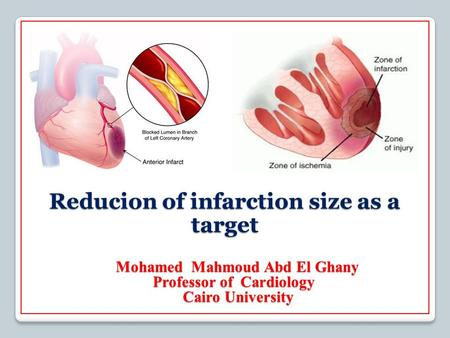 S Reducion of infarction size as a target Mohamed Mahmoud Abd El Ghany Mohamed Mahmoud Abd El Ghany Cardiology Professor of Cairo University.