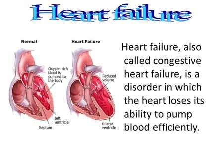 Heart failure, also called congestive heart failure, is a disorder in which the heart loses its ability to pump blood efficiently.