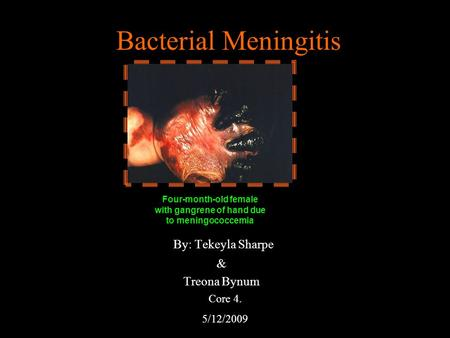 Bacterial Meningitis By: Tekeyla Sharpe & Treona Bynum Four-month-old female with gangrene of hand due to meningococcemia Core 4. 5/12/2009.