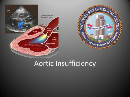 Aortic Insufficiency. Outline Epidemiology Etiology Pathophysiology Clinical Presentation / Symptoms Natural History Diagnosis – Physical Exam – Echocardiography.