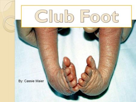 By: Cassie Maier. What is Club Foot? Club Foot is when one or both babies feet are turned inward and downward and cannot be put into normal position easily.