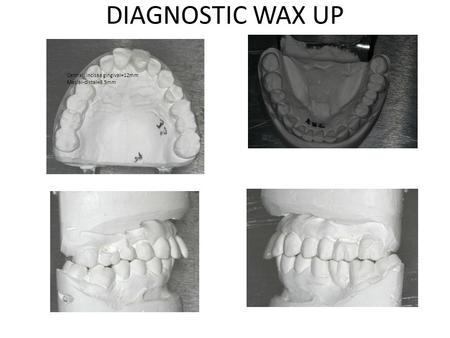 DIAGNOSTIC WAX UP 17.0mm 5.5mm Interocc space=10mm Open bite=4mm Central incisaa gingival=12mm Mesial-distal=8.5mm.