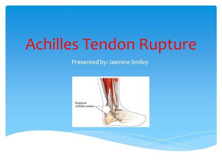 Achilles Tendon Rupture Presented by: Jasmine Smiley.