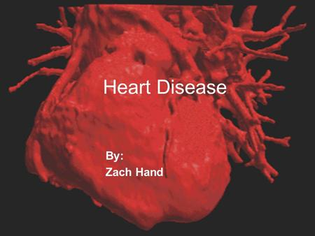 Heart Disease By: Zach Hand. Table of contents  What is Heart Disease?  Types of Heart disease  Heart Attack  Heart Failure  Endocarditis  One Day.
