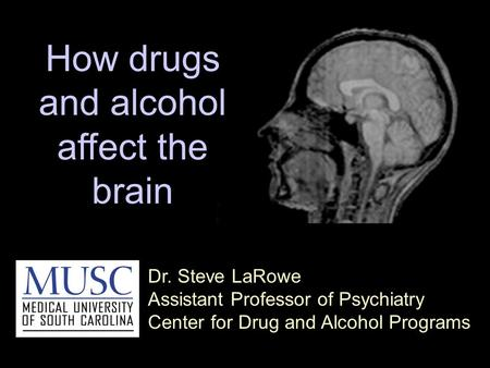 Dr. Steve LaRowe Assistant Professor of Psychiatry Center for Drug and Alcohol Programs How drugs and alcohol affect the brain.