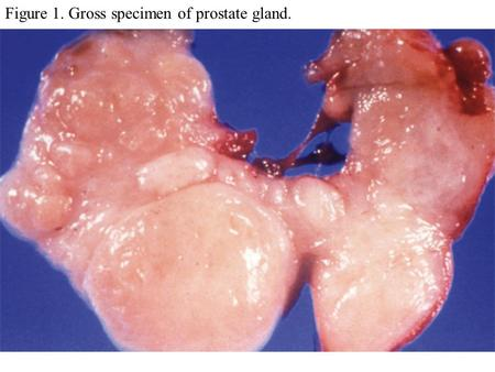 Figure 1. Gross specimen of prostate gland.. Figure 2. Microscopic effects of BPH.