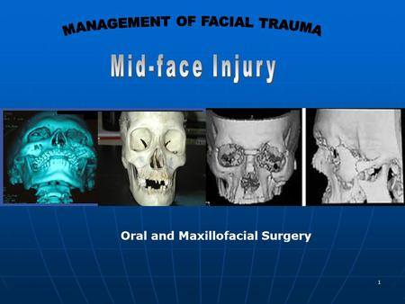 1 Oral and Maxillofacial Surgery. 2 Mid-face Definition: The area between a superior plane drawn through the zygomatico- frontal sutures tangential to.