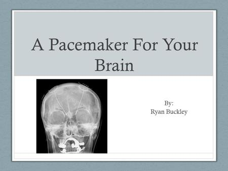 A Pacemaker For Your Brain By: Ryan Buckley. What is a Pacemaker For The Brain? Similar to a heart pacemakers Implanted in chest Electrical stimulation.