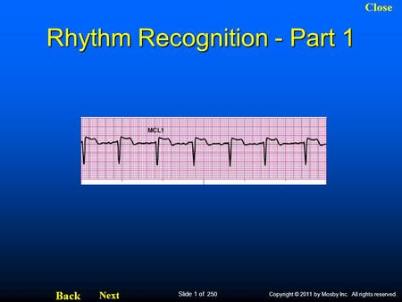 Slide 1 of 250 Next Back Close Copyright © 2011 by Mosby Inc. All rights reserved. Rhythm Recognition - Part 1.