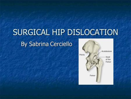 SURGICAL HIP DISLOCATION By Sabrina Cerciello. SURGICAL HIP DISLOCATION is a demanding surgical procedure that permits unlimited access to the entire.