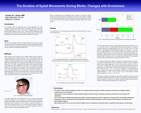 The Duration of Eyelid Movements During Blinks: Changes with Drowsiness Tucker, AJ, Johns, MW Sleep Diagnostics Pty Ltd Melbourne, Australia Introduction.