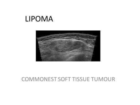 LIPOMA COMMONEST SOFT TISSUE TUMOUR. Aim: To assess ultrasound characteristics of a lipoma that may suggest atypical nature or frank sarcoma Study: Population;