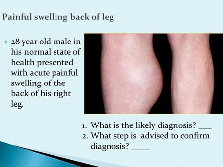 Painful swelling back of leg  28 year old male in his normal state of health presented with acute painful swelling of the back of his right leg. 1.What.