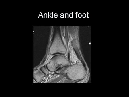 Ankle and foot Standard Ankle Series AP Ankle Medial Oblique Ankle Lateral Ankle.