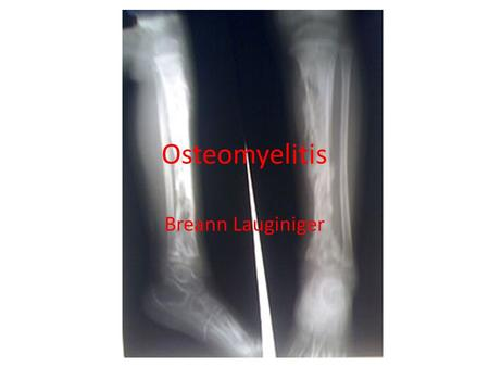 Osteomyelitis Breann Lauginiger. Symptoms and signs Severe pain in or around infected bone Fever and chills Nausea and fatigue Skin is sore, red and irritated.