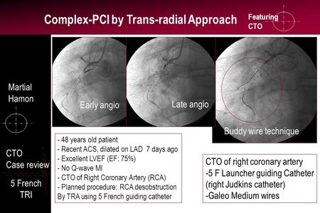 Featuring CTO Complex-PCI by Trans-radial Approach CTO Case review 5 French TRI CTO of right coronary artery -5 F Launcher guiding Catheter (right Judkins.