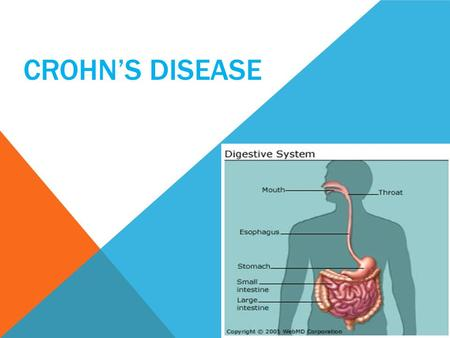 CROHN'S DISEASE. Crohn's commonly strikes the small intestine (called the ileum) or parts of the large intestine (the colon), but symptoms can appear.
