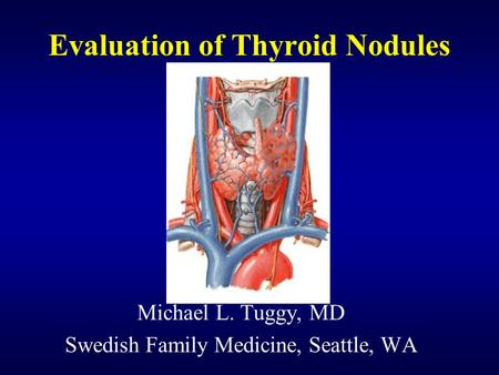 Evaluation of Thyroid Nodules Michael L. Tuggy, MD Swedish Family Medicine, Seattle, WA.