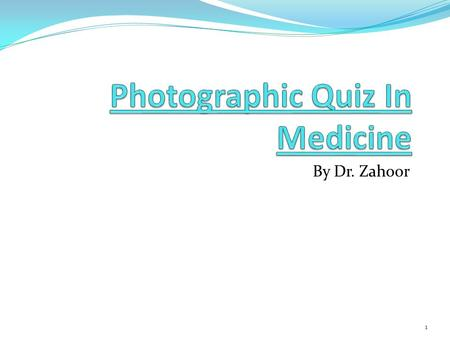 By Dr. Zahoor 1. Question 1: 1.What do you observe in this male patient? 2.Give one cause. 2.
