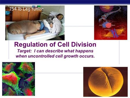 AP Biology 2008-2009 Regulation of Cell Division Target: I can describe what happens when uncontrolled cell growth occurs. 154 lb Leg tumor.