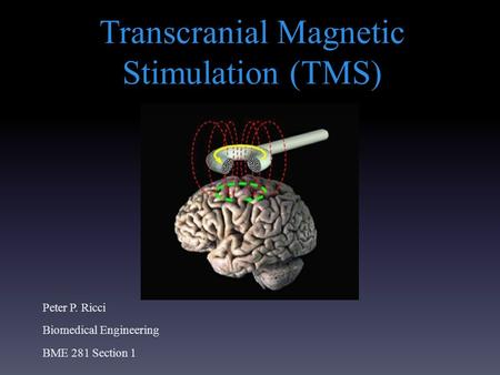 Transcranial Magnetic Stimulation (TMS) Peter P. Ricci Biomedical Engineering BME 281 Section 1.