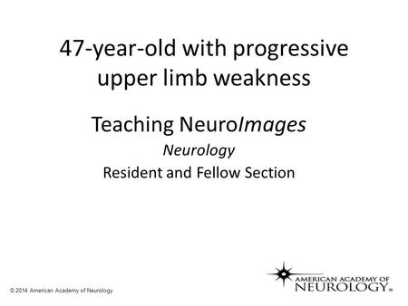 47-year-old with progressive upper limb weakness Teaching NeuroImages Neurology Resident and Fellow Section © 2014 American Academy of Neurology.