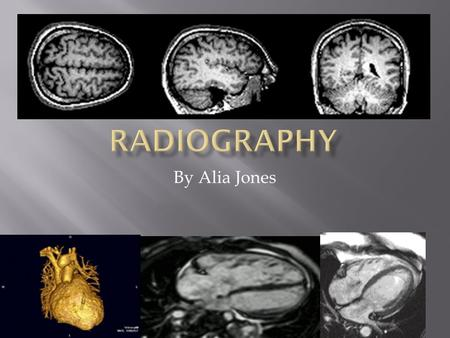 By Alia Jones.  What is a Radiographer and what do they do?  What are some of the subjects you need to take in high school and university?  How does.