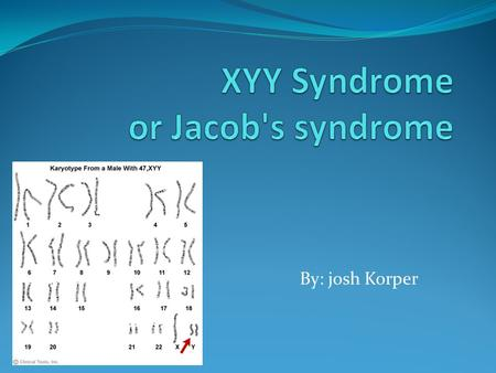 By: josh Korper. Diagnosis This condition occurs in about 1 in 1,000 newborn boys. Five to 10 boys with 47,XYY syndrome are born in the United States.