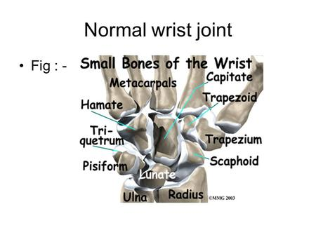 Normal wrist joint Fig : -.