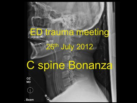 ED trauma meeting 26 th July 2012 C spine Bonanza.