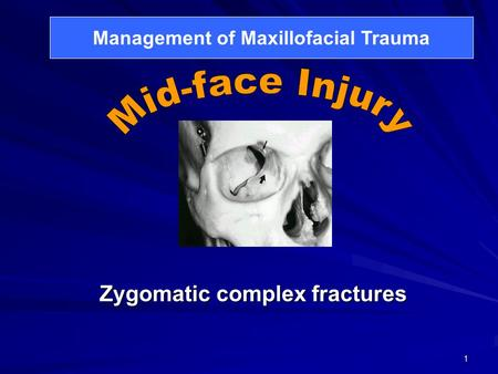 1 Zygomatic complex fractures Management of Maxillofacial Trauma.