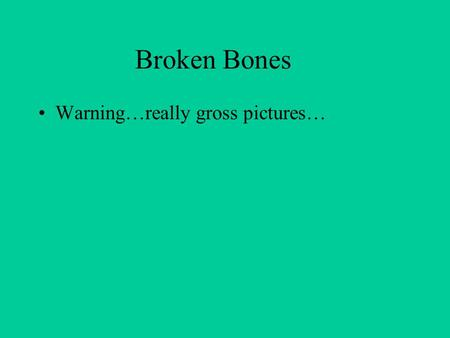 Broken Bones Warning…really gross pictures…. Simple Fracture: bone does not break skin.