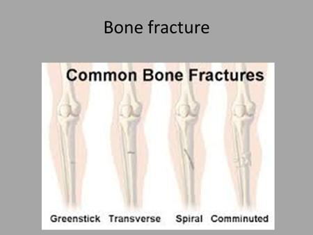 Bone fracture. 1- Simple fracture. clean break overlying skin. 1- Simple transverse fractures at right-angles broken stick of chalk. 2- Simple oblique.