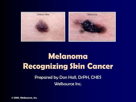 © 2005, Wellsource, Inc. Melanoma Recognizing Skin Cancer Prepared by Don Hall, DrPH, CHES Wellsource Inc.