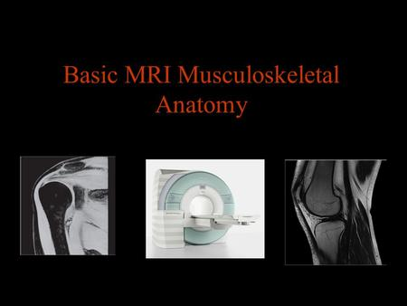 Basic MRI Musculoskeletal Anatomy. Musculoskeletal MRI Indications Sport related injuries Mensical abnormalities Osteonecrosis Bone marrow abnormalities.